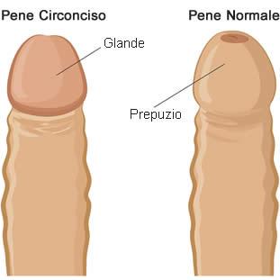 pene-circonciso